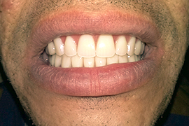 Bar retained overdenture_MDental Clinic Hungary