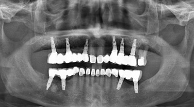 Panoramic X-ray after full upper zirconia bridge on six dental implants