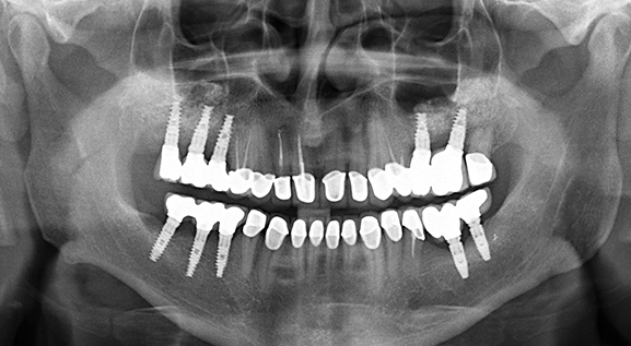 Panoramic X-ray after after zirconia bridges on implants for molars and zirconia crowns on front teeth