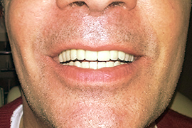 Porcelain-crown_bridge-on-implant_after_Jean-Marc-Richard_MDental-Clinic-Hungary