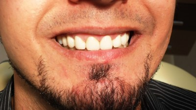 After zirconia crown treatment