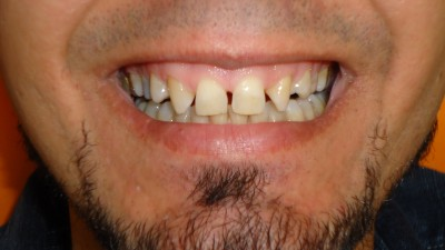 Before zirconia crown treatment