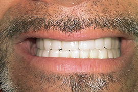 After zirconia bridges on implants for molars and zirconia crowns on front teeth