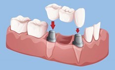 Bridge on 2 implants to replace multiple missing teeth