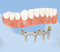 Denture on implant bar anchored by four implants
