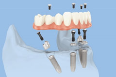 All-on-4 denture, a minimally invasive restoration in case of sever bone loss