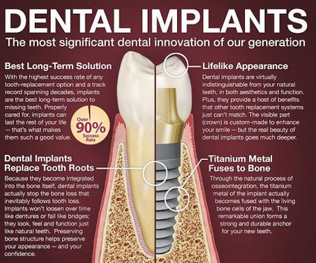 Dental implant - the most significant dental innovation of our generation