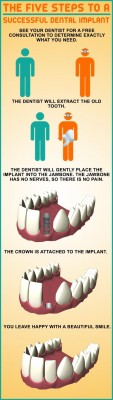 Five easy steps to get a tooth replacement on implant