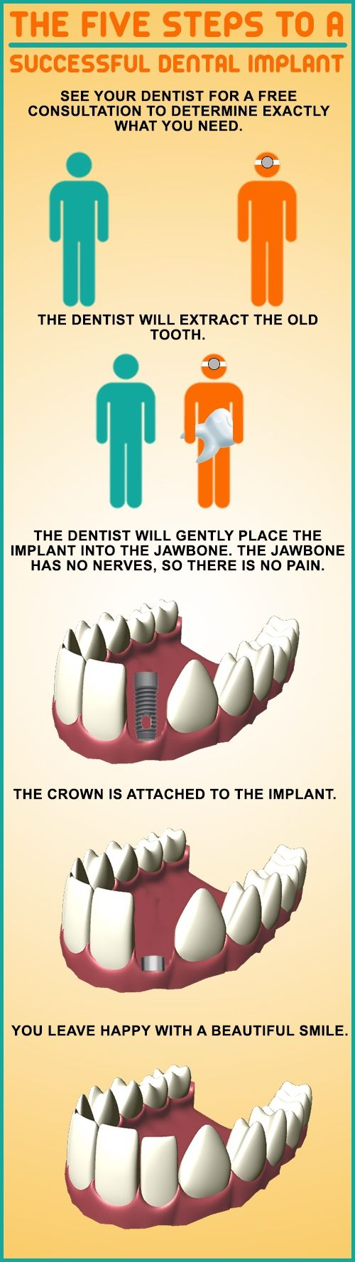 Five steps to successful implant