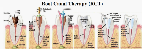 Decoding root canal treatment