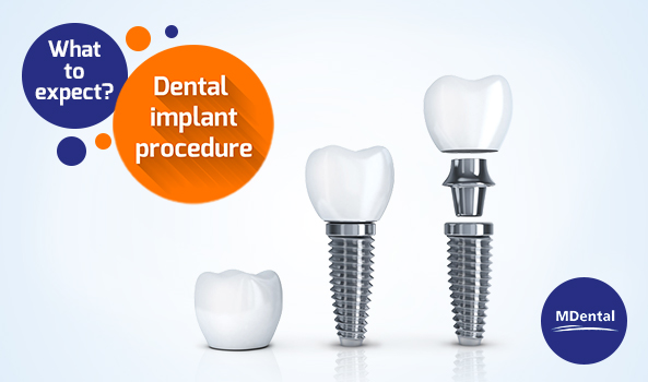 MDental Clinic_blog_Three Easy Steps to a Dental Implant