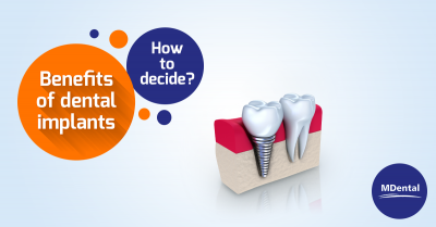 MDental_Benefits_of_dental_implants