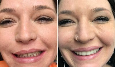Erica before and after dental treatment