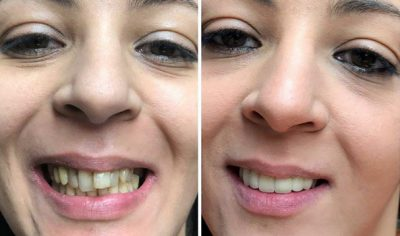 Ismahel and her new zirconia crowns