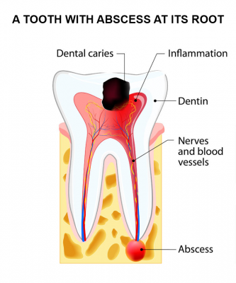 Abscess at the tooth root