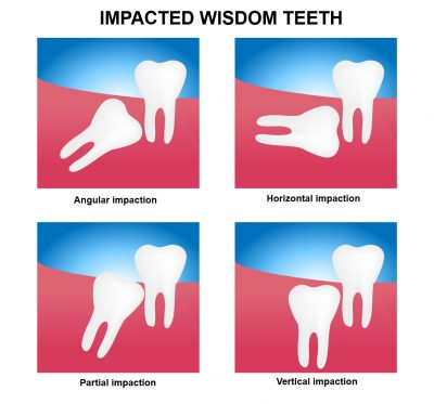 Examples for impacted wisdom tooth