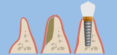 Steps of bone grafting