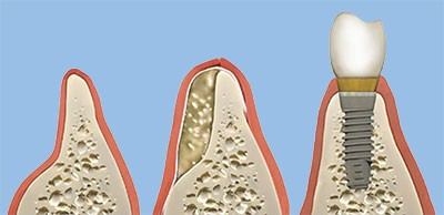 Bone before and after bone grafting