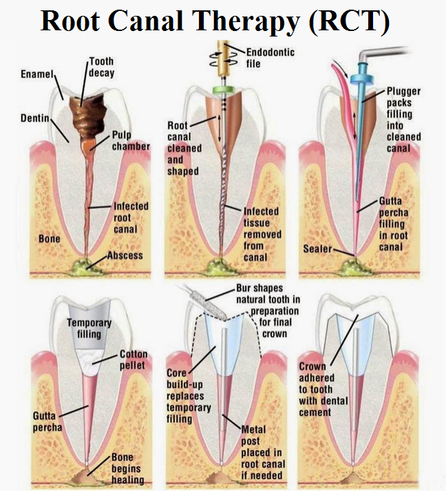 Root canal treatment_v2