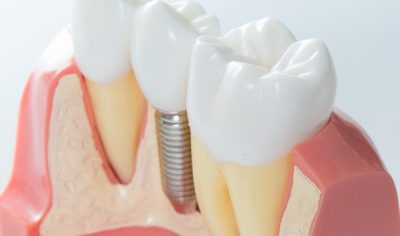 Dental implant - MDental Clinic Hungary