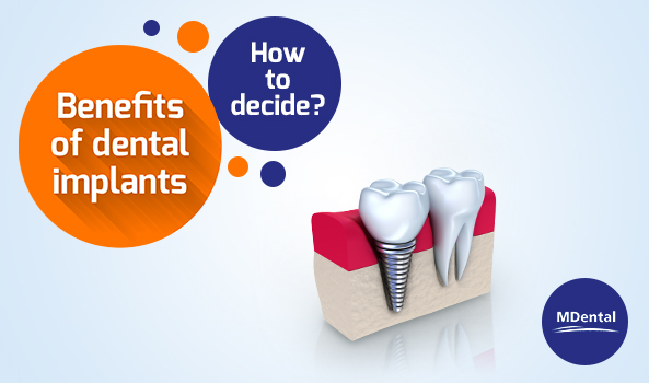 MDental_Blog_Benefits of Dental Implant