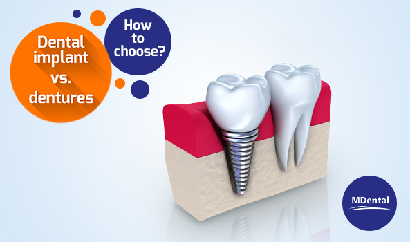 All You Need to Know About Dental Implants Part 1 – Benefits of Dental Implants