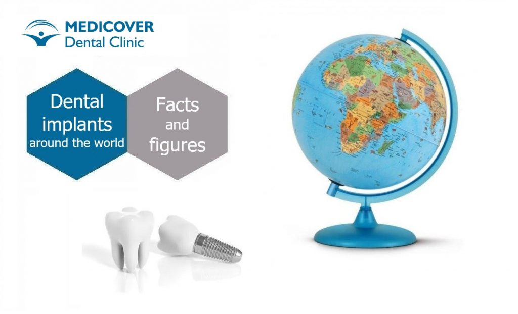 BLOG_Dental-Implant-Facts-and-Figures