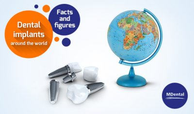 Facts and Figures on Dental Implants