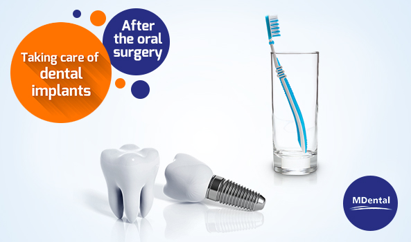 MDental Clinic Hungary_How to take care of dental implants