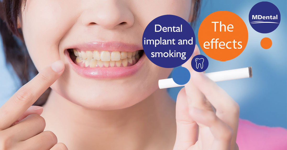 The effect of tobacco on dental implants