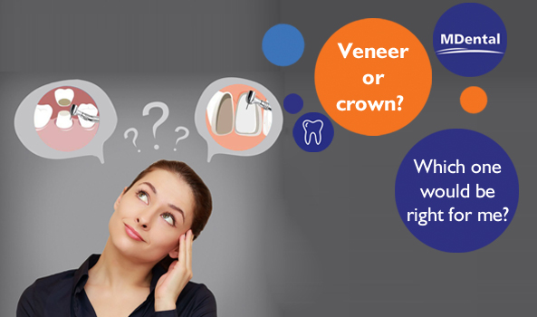 Veneer or crown? Which one would be right for me?