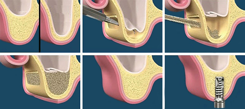 The steps of sinus lift