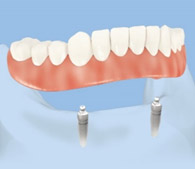 Locator (ball retained) overdenture on 2 teeth implants