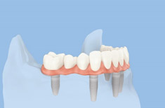 Full bridge on 6 dental implants, a perfect solution for toothless jaw