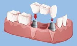 Bridge on 2 dental implants to replace multiple missing teeth