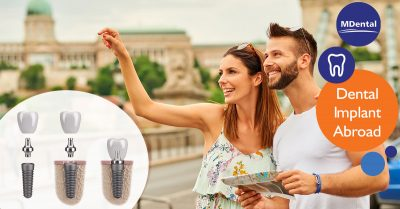 The benefits of dental implant abroad