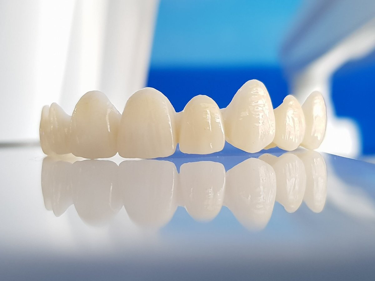 Premium quality zirconia crown abroad | in Budapest ...