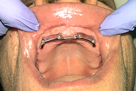 Dental implant supported overdenture bar