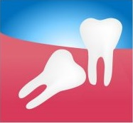 Angular impacted wisdom teeth