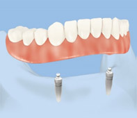 Locator (ball retained) overdenture on 2 dental implants